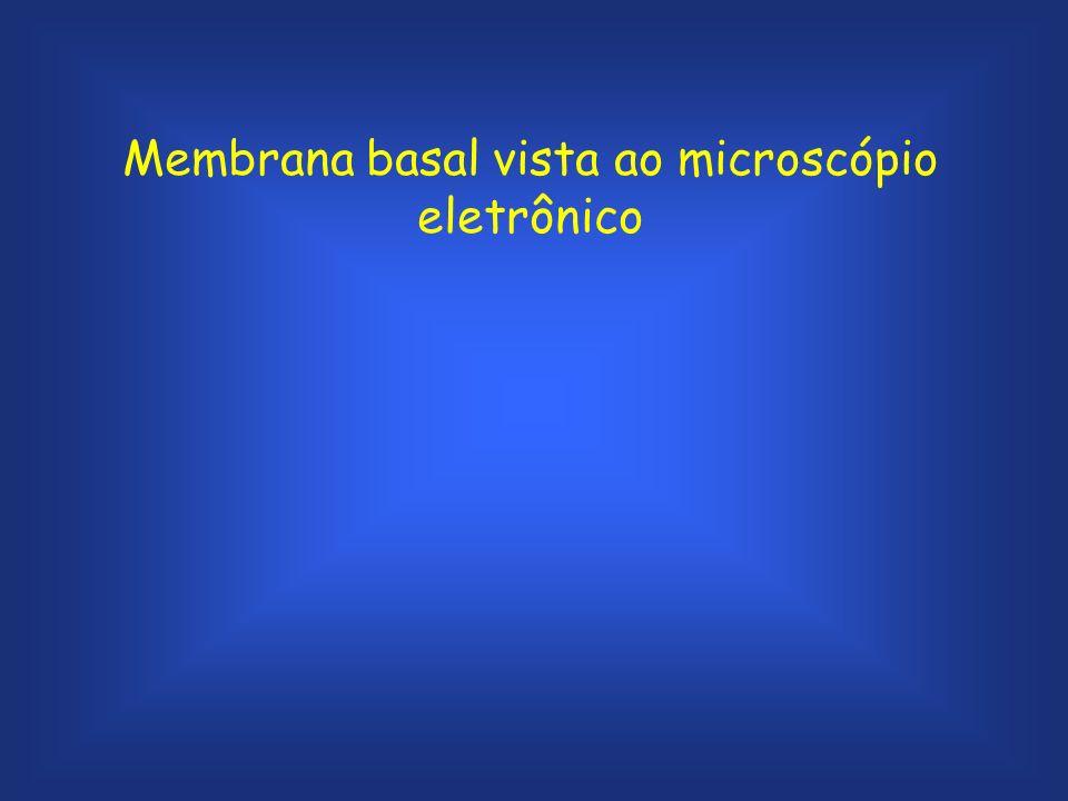 Membrana basal vista ao microscópio eletrônico