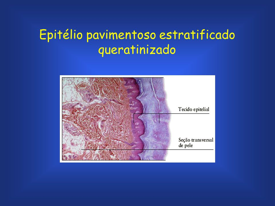 Epitélio pavimentoso estratificado queratinizado