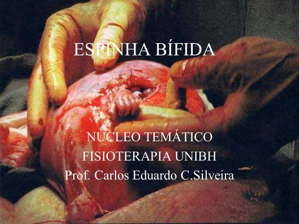 NÚCLEO TEMÁTICO FISIOTERAPIA UNIBH Prof. Carlos Eduardo C.Silveira