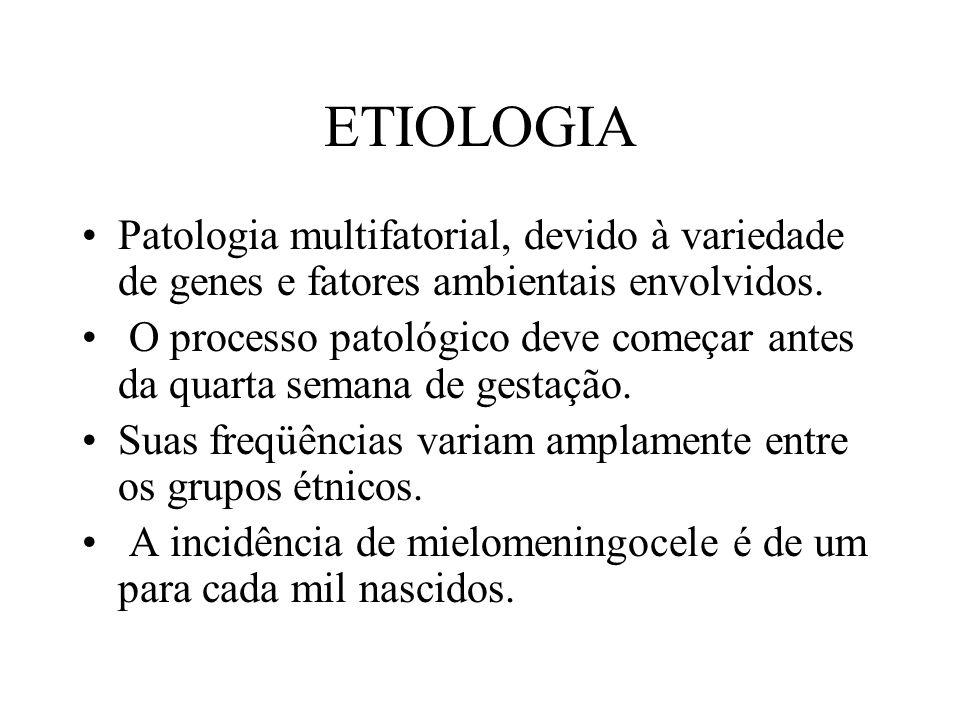ETIOLOGIA Patologia multifatorial, devido à variedade de genes e fatores ambientais envolvidos.