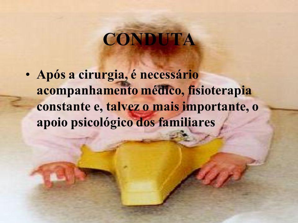 CONDUTA Após a cirurgia, é necessário acompanhamento médico, fisioterapia constante e, talvez o mais importante, o apoio psicológico dos familiares.