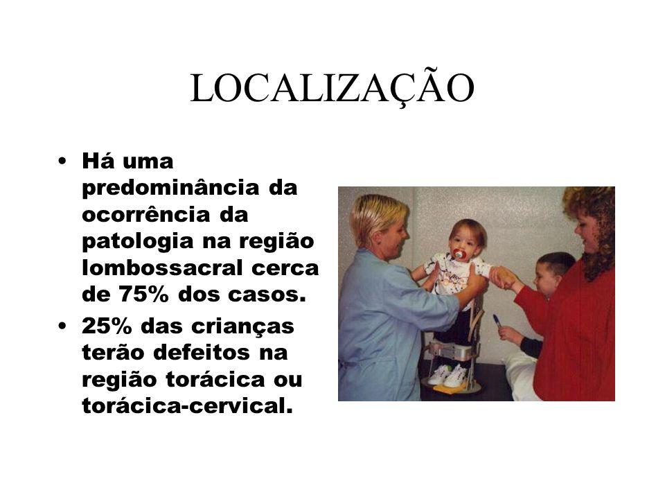 LOCALIZAÇÃO Há uma predominância da ocorrência da patologia na região lombossacral cerca de 75% dos casos.