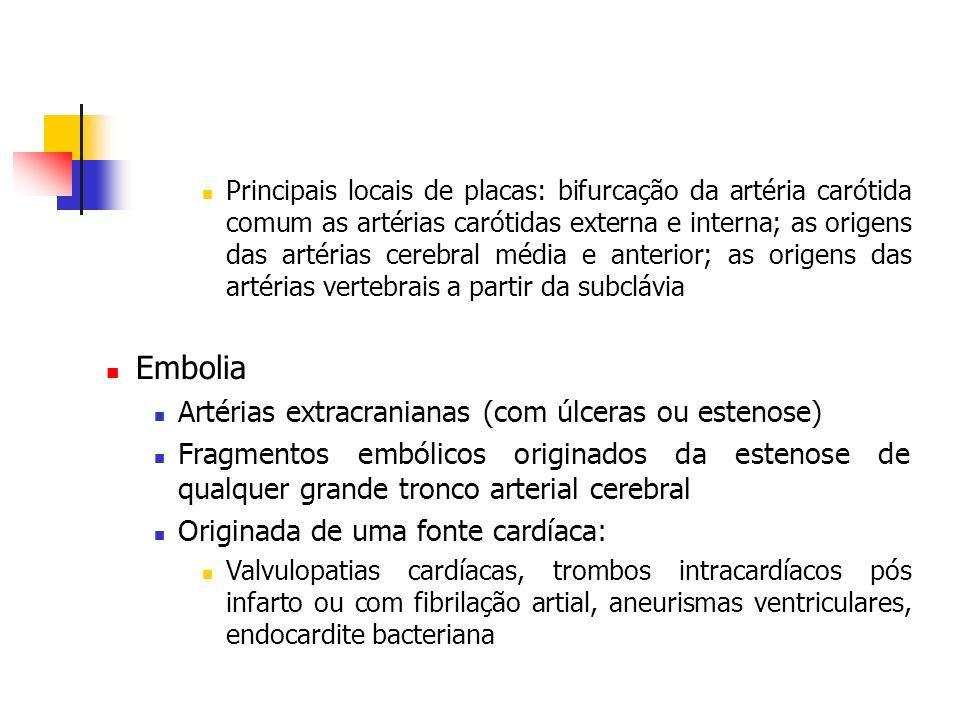 Embolia Artérias extracranianas (com úlceras ou estenose)
