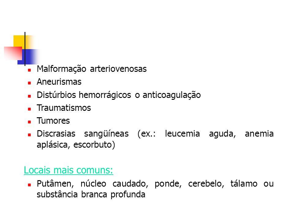 Locais mais comuns: Malformação arteriovenosas Aneurismas