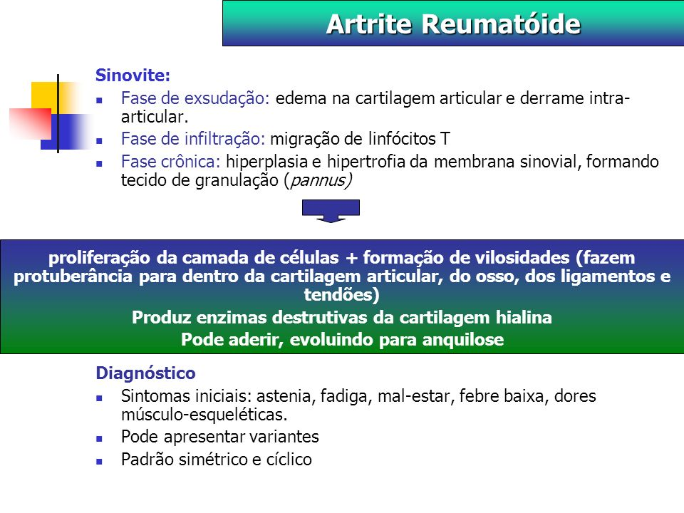 Artrite Reumatóide Sinovite: