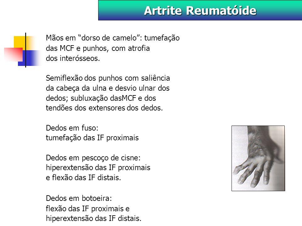 Artrite Reumatóide Mãos em dorso de camelo : tumefação