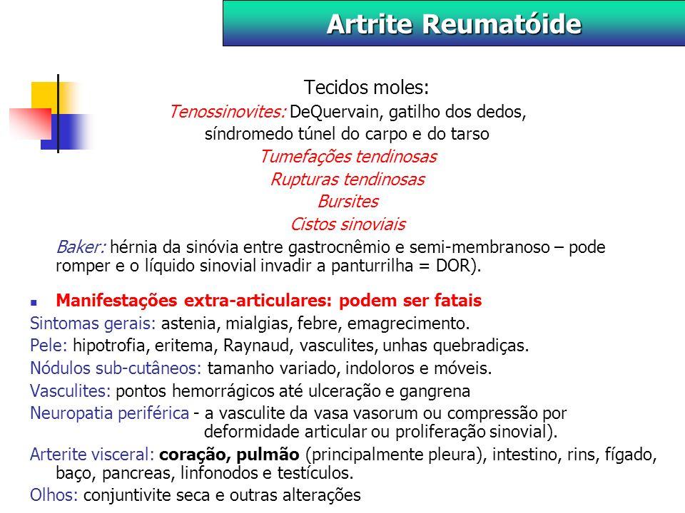 Artrite Reumatóide Tecidos moles: