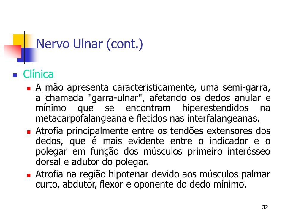 Nervo Ulnar (cont.) Clínica