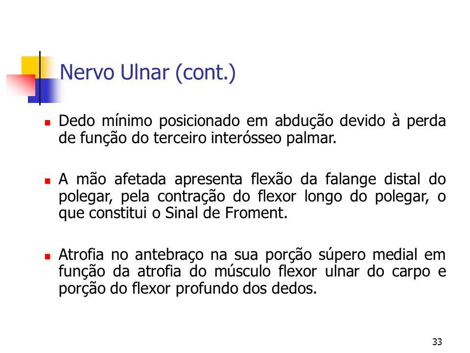 Nervo Ulnar (cont.) Dedo mínimo posicionado em abdução devido à perda de função do terceiro interósseo palmar.