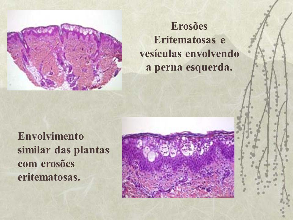Erosões Eritematosas e vesículas envolvendo a perna esquerda.