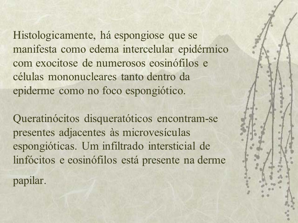 Histologicamente, há espongiose que se manifesta como edema intercelular epidérmico com exocitose de numerosos eosinófilos e células mononucleares tanto dentro da epiderme como no foco espongiótico.