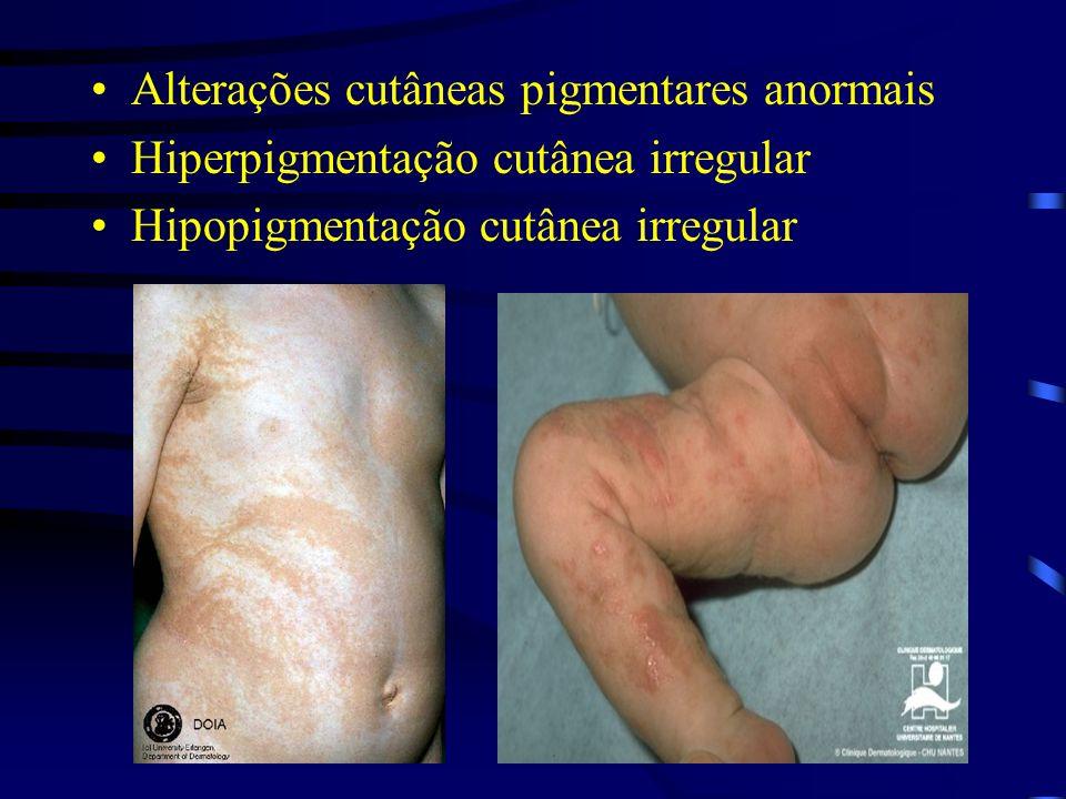 Alterações cutâneas pigmentares anormais