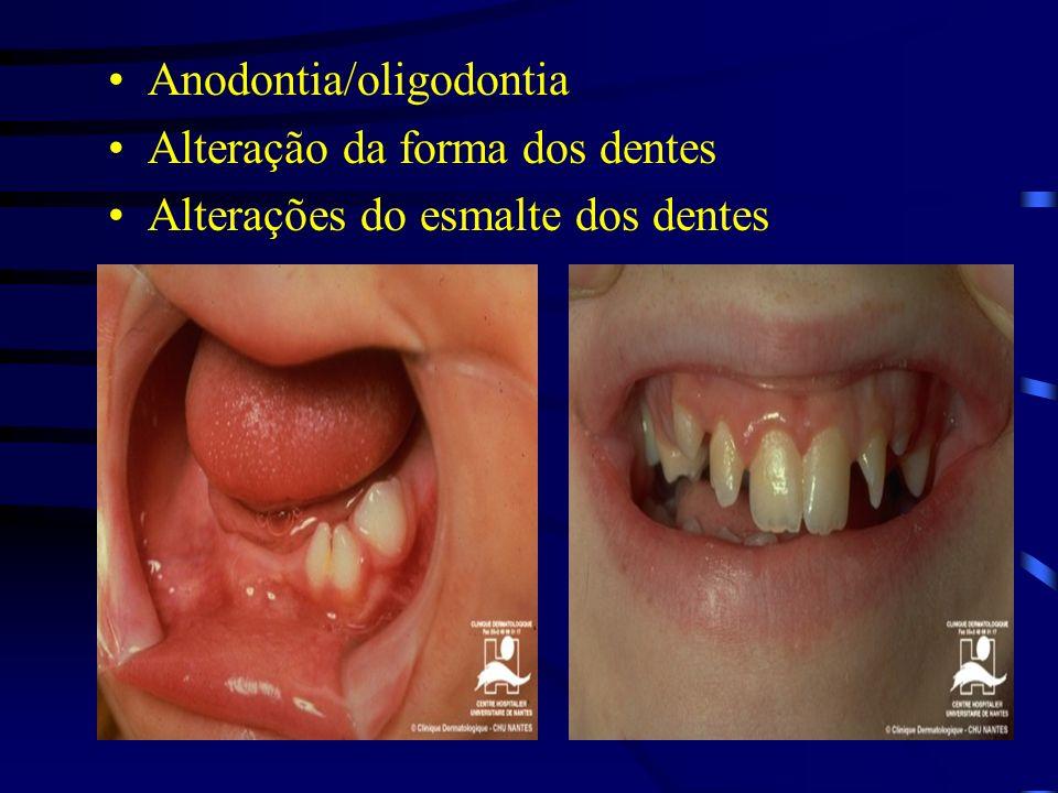 Anodontia/oligodontia