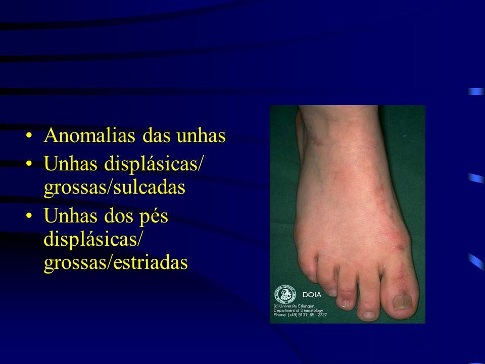 Anomalias das unhas Unhas displásicas/ grossas/sulcadas.
