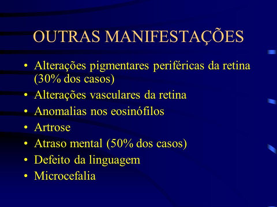 OUTRAS MANIFESTAÇÕES Alterações pigmentares periféricas da retina (30% dos casos) Alterações vasculares da retina.