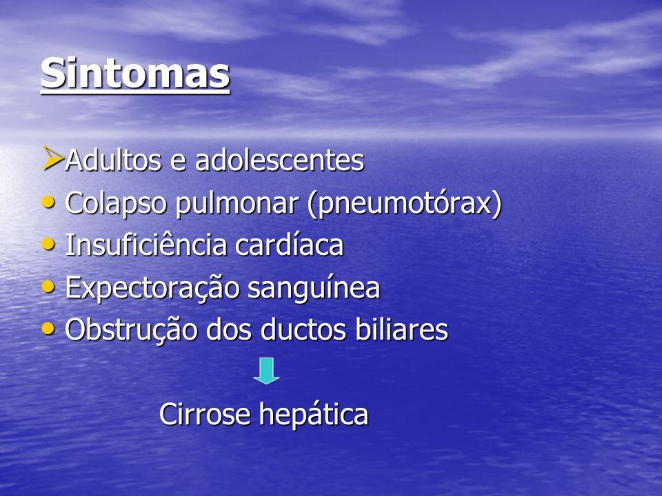 Sintomas Adultos e adolescentes Colapso pulmonar (pneumotórax)