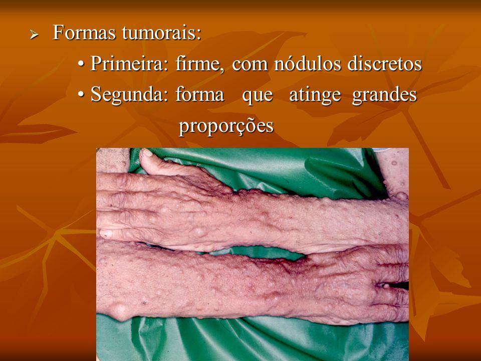 Formas tumorais: • Primeira: firme, com nódulos discretos. • Segunda: forma que atinge grandes.