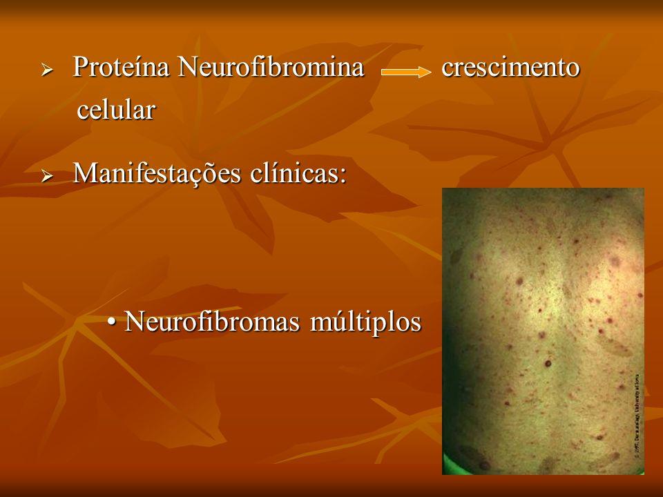 Proteína Neurofibromina crescimento