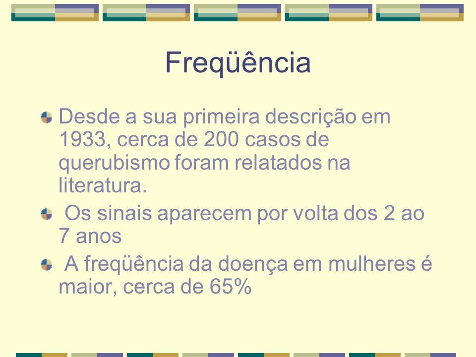 Freqüência Desde a sua primeira descrição em 1933, cerca de 200 casos de querubismo foram relatados na literatura.