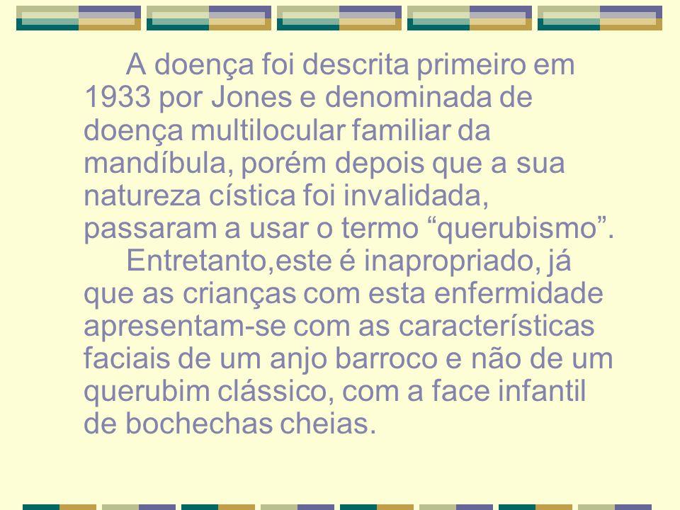 A doença foi descrita primeiro em 1933 por Jones e denominada de doença multilocular familiar da mandíbula, porém depois que a sua natureza cística foi invalidada, passaram a usar o termo querubismo .