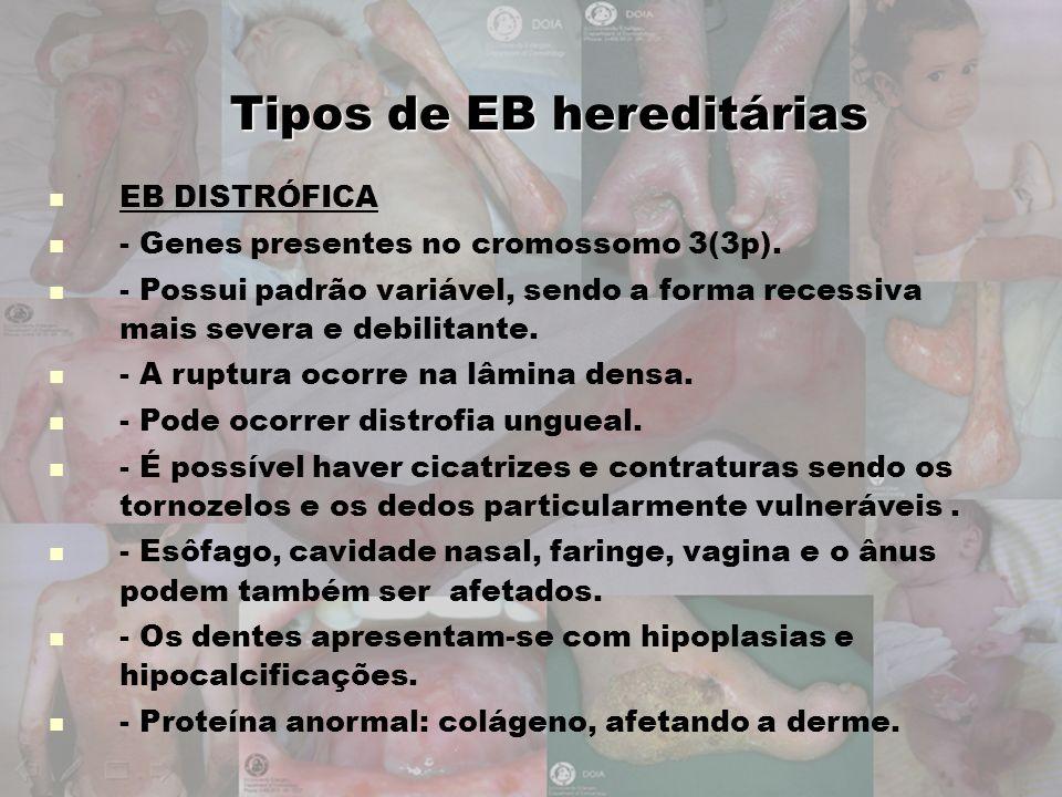 Tipos de EB hereditárias