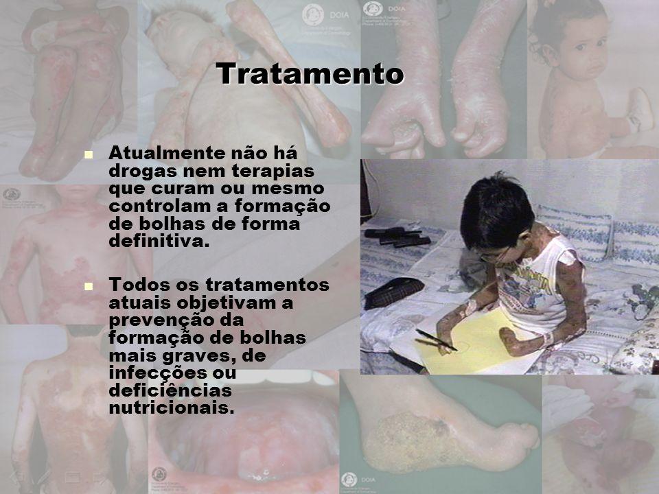 Tratamento Atualmente não há drogas nem terapias que curam ou mesmo controlam a formação de bolhas de forma definitiva.