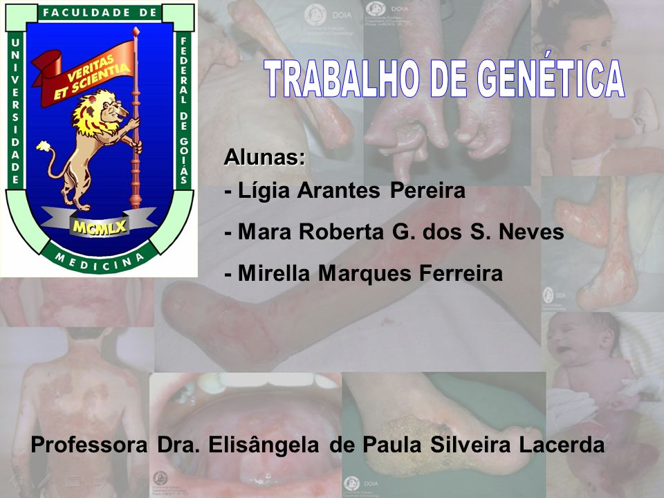 TRABALHO DE GENÉTICA Alunas: - Lígia Arantes Pereira