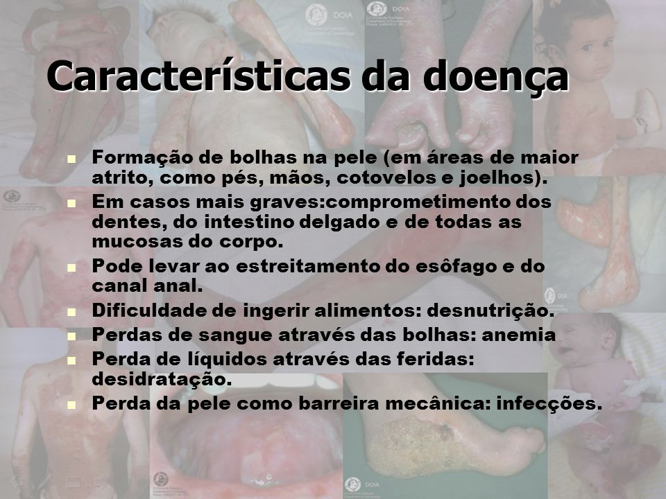 Características da doença