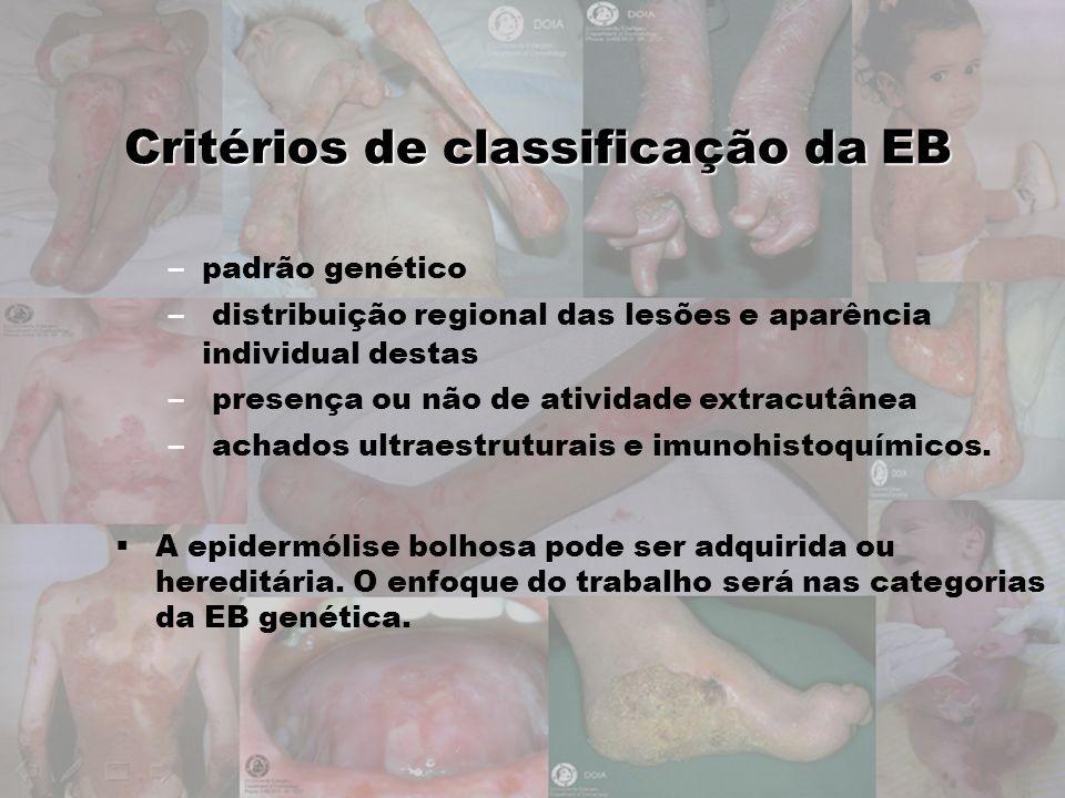 Critérios de classificação da EB