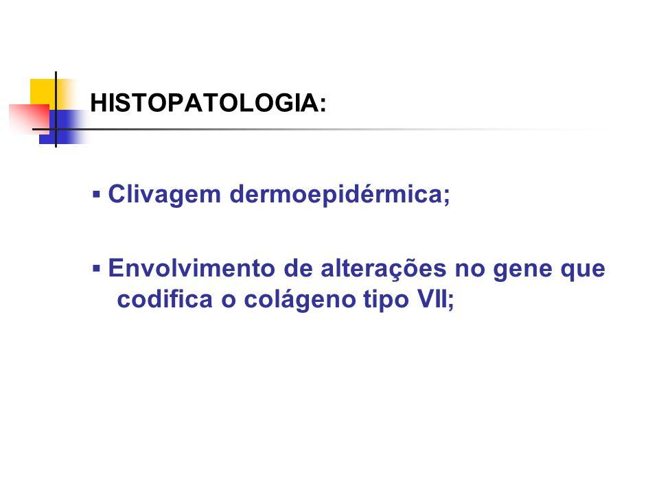 HISTOPATOLOGIA:▪ Clivagem dermoepidérmica; ▪ Envolvimento de alterações no gene que codifica o colágeno tipo VII;