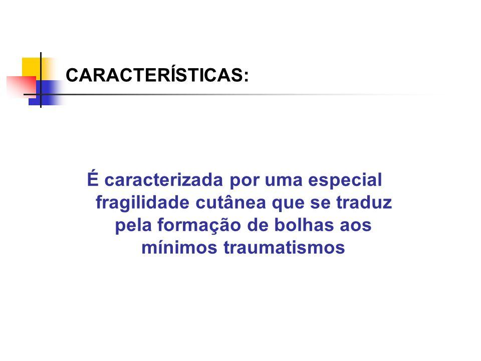 CARACTERÍSTICAS: É caracterizada por uma especial fragilidade cutânea que se traduz pela formação de bolhas aos mínimos traumatismos.