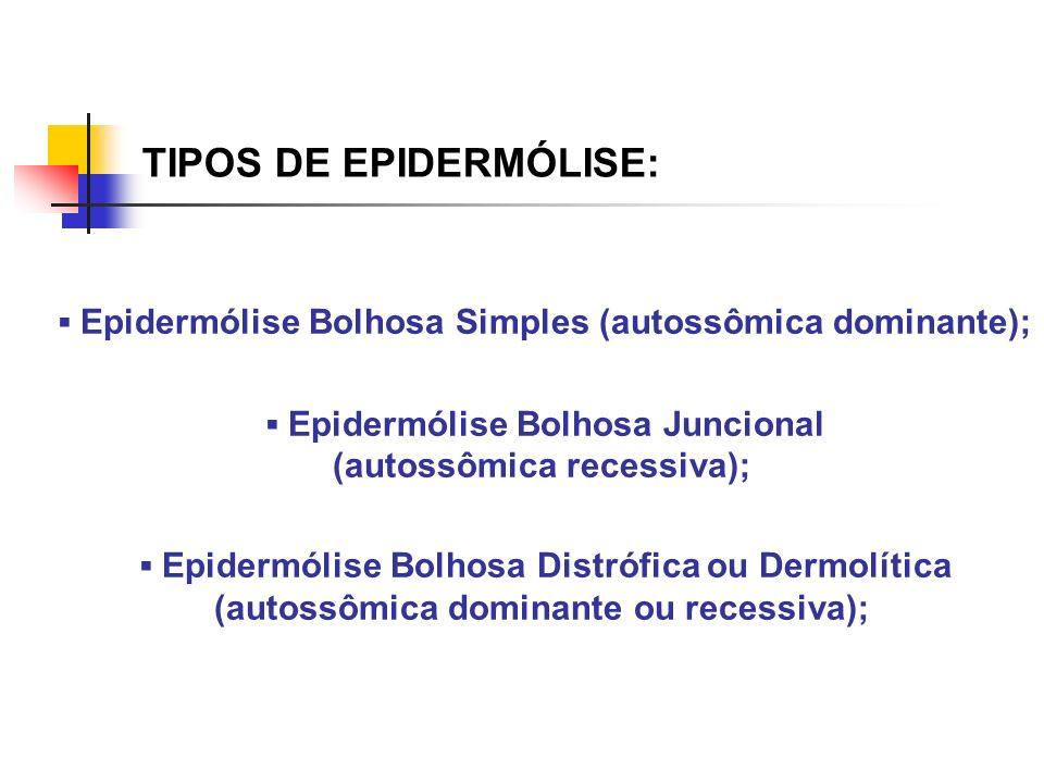 TIPOS DE EPIDERMÓLISE: