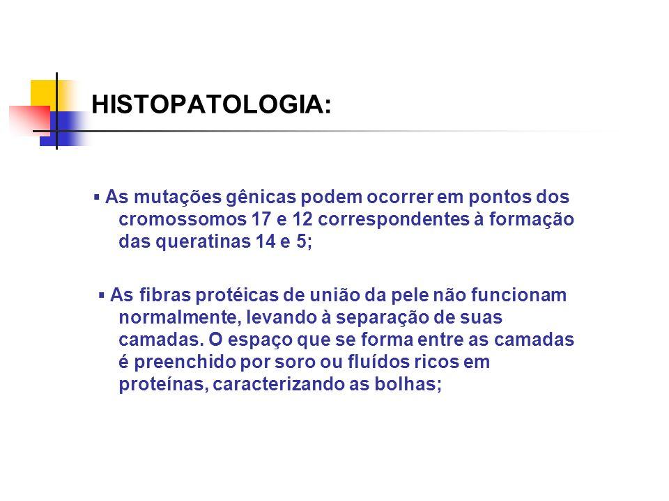 HISTOPATOLOGIA:▪ As mutações gênicas podem ocorrer em pontos dos cromossomos 17 e 12 correspondentes à formação das queratinas 14 e 5;