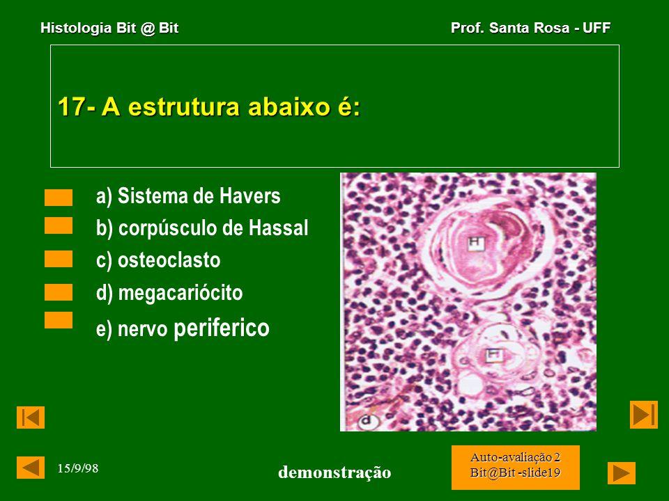 17- A estrutura abaixo é: a) Sistema de Havers b) corpúsculo de Hassal