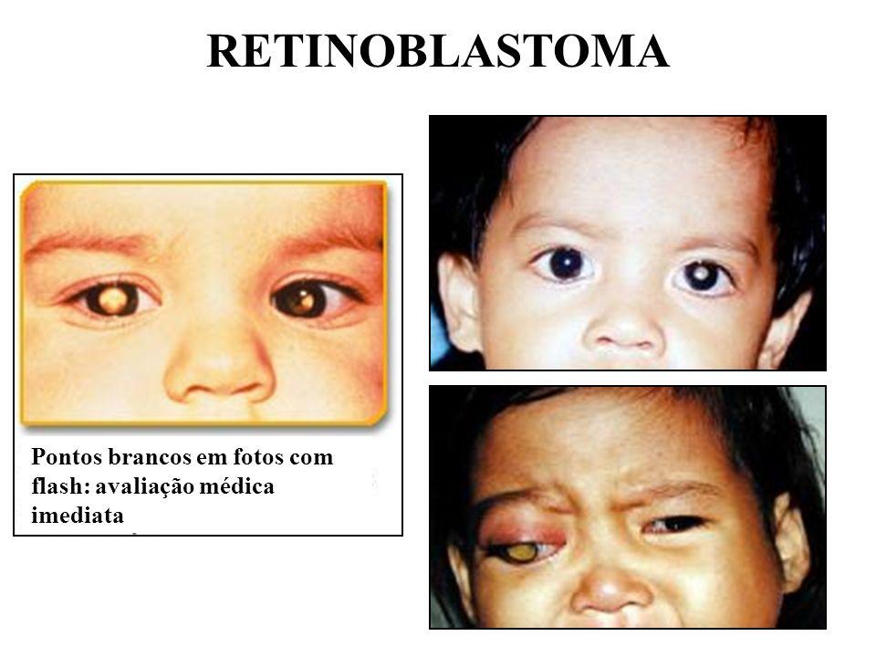 RETINOBLASTOMA Pontos brancos em fotos com flash: avaliação médica imediata