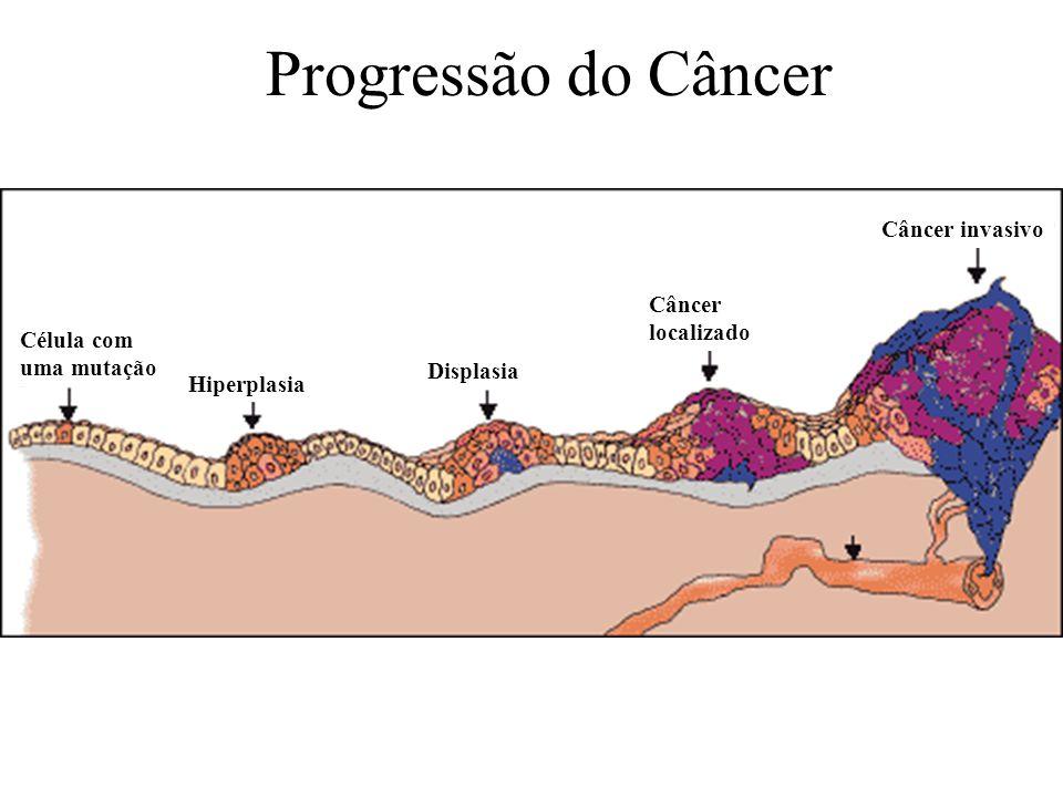 Progressão do Câncer Câncer invasivo Câncer localizado