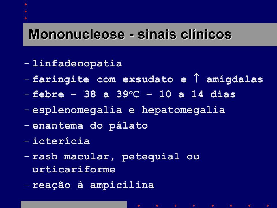 Mononucleose - sinais clínicos