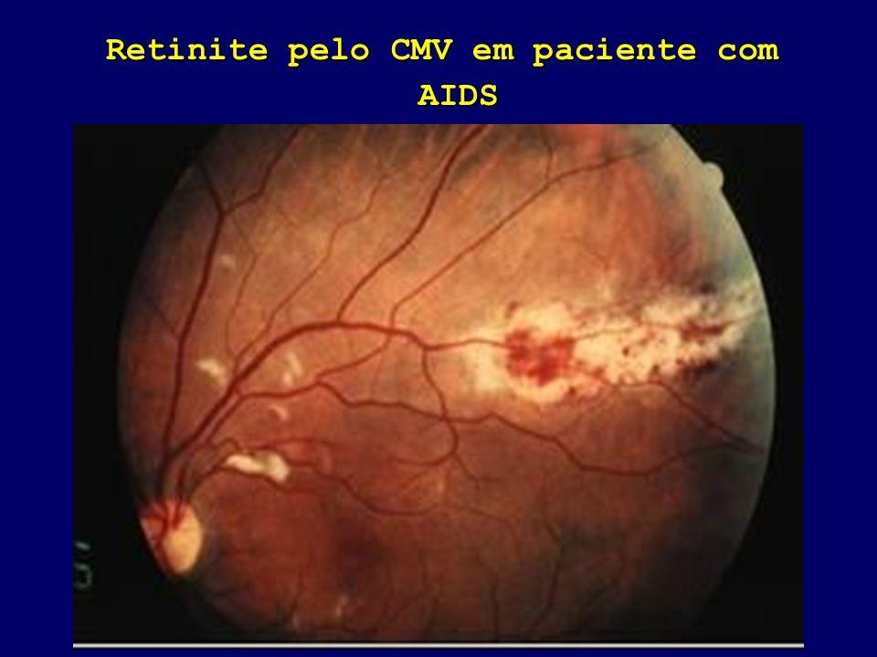 Retinite pelo CMV em paciente com AIDS