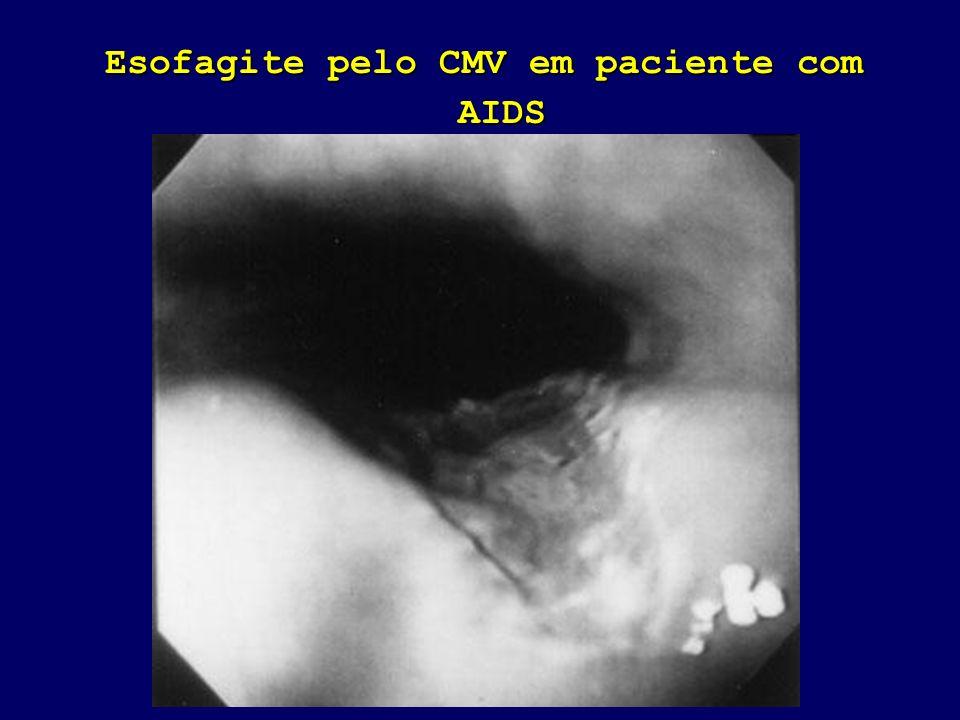 Esofagite pelo CMV em paciente com AIDS