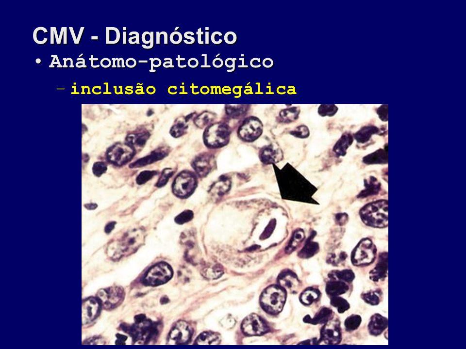 CMV - Diagnóstico Anátomo-patológico inclusão citomegálica