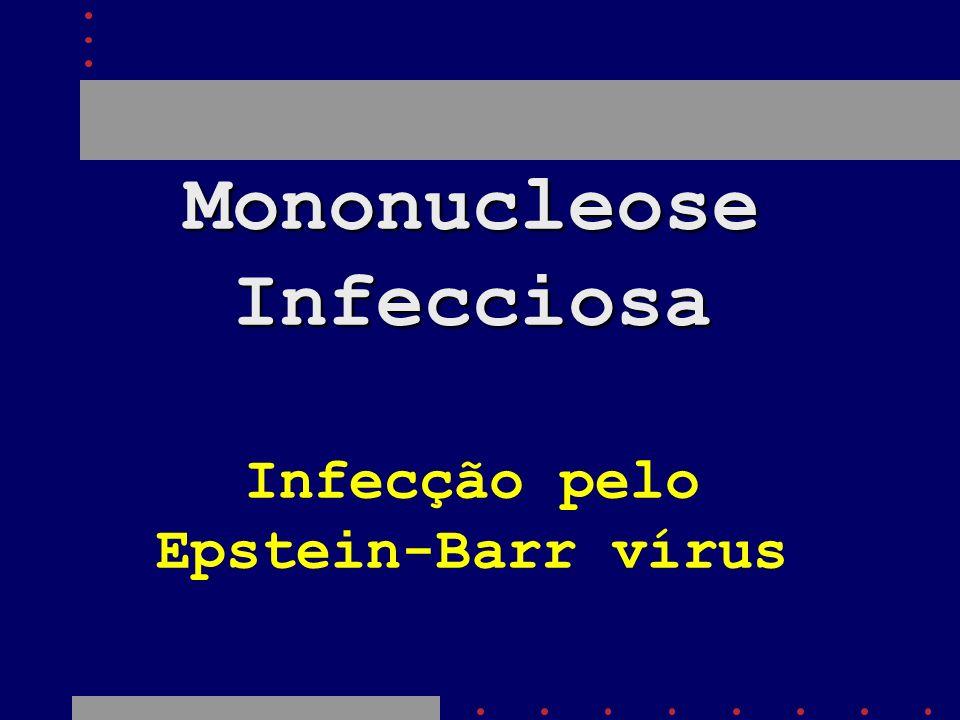 Mononucleose Infecciosa Infecção pelo Epstein-Barr vírus