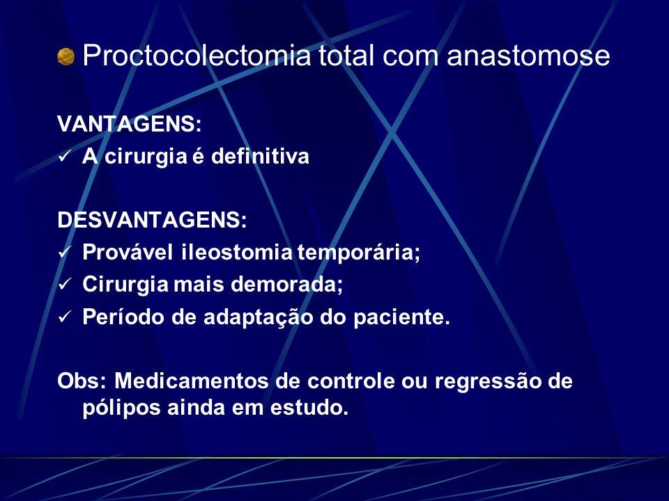 Proctocolectomia total com anastomose