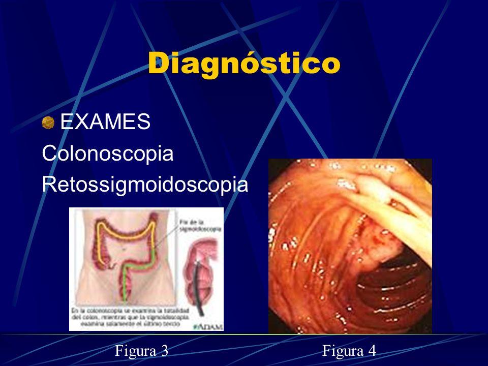 Diagnóstico EXAMES. Colonoscopia. Retossigmoidoscopia.