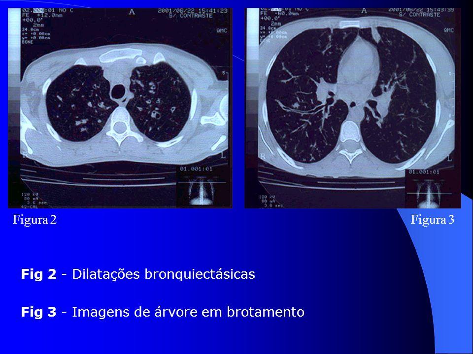 Figura 2 Figura 3 Fig 2 - Dilatações bronquiectásicas Fig 3 - Imagens de árvore em brotamento