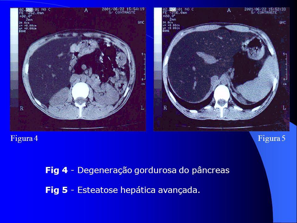 Figura 4 Figura 5 Fig 4 - Degeneração gordurosa do pâncreas Fig 5 - Esteatose hepática avançada.