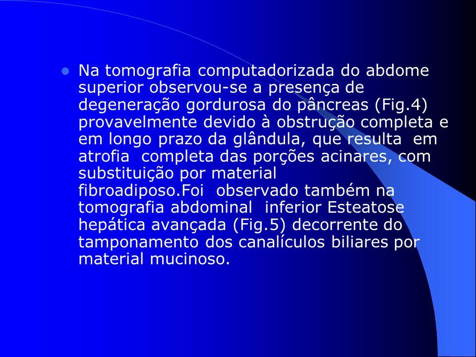 Na tomografia computadorizada do abdome superior observou-se a presença de degeneração gordurosa do pâncreas (Fig.4) provavelmente devido à obstrução completa e em longo prazo da glândula, que resulta em atrofia completa das porções acinares, com substituição por material fibroadiposo.Foi observado também na tomografia abdominal inferior Esteatose hepática avançada (Fig.5) decorrente do tamponamento dos canalículos biliares por material mucinoso.
