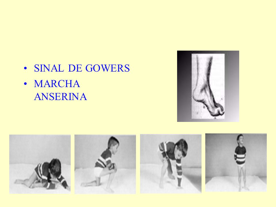 SINAL DE GOWERS MARCHA ANSERINA