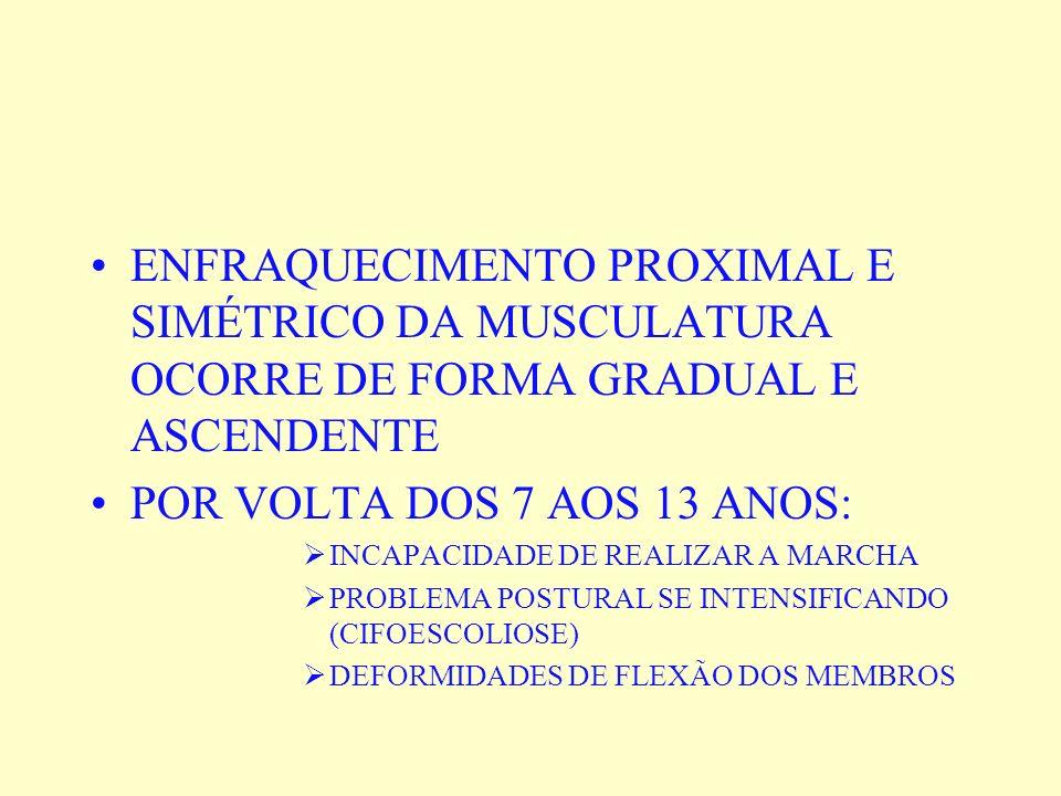 ENFRAQUECIMENTO PROXIMAL E SIMÉTRICO DA MUSCULATURA OCORRE DE FORMA GRADUAL E ASCENDENTE