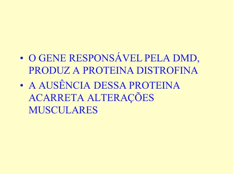O GENE RESPONSÁVEL PELA DMD, PRODUZ A PROTEINA DISTROFINA
