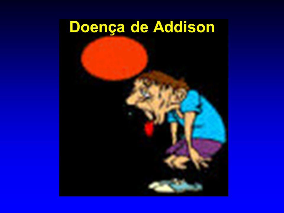 Doença de Addison